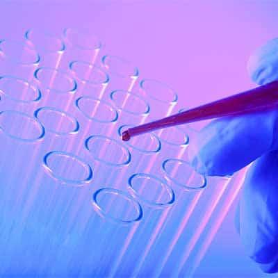 Contaminazioni da Virus alimentari e le infezioni virali